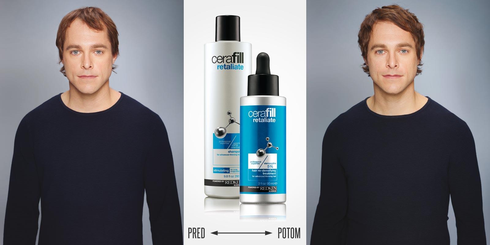 Pred a po používaní Cerafill Defence FX od Redken spoločne s úpravou strihu, farby a stylingu.