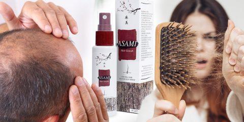 Vypadávanie vlasov dnes trápi veľa žien a mužov.
